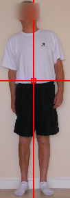 Posture alignment therapy - After 1 session